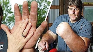 Download 9 People With the Biggest Arms, Feet and More. You Won't Believe They Are Real Video