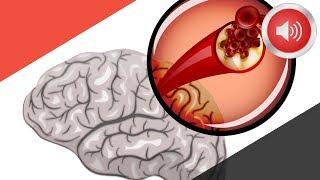 Download 뇌졸중이 오기 1달 전 나타나는 증상들 Video