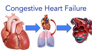 Download Congestive Heart Failure (CHF) Explained - MADE EASY Video