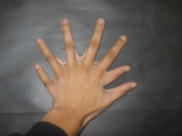 15_6 Fingered Hand (2/2)