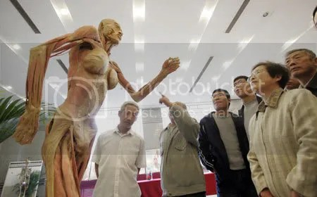 Human-body20specimen.jpg picture by Baoanh02