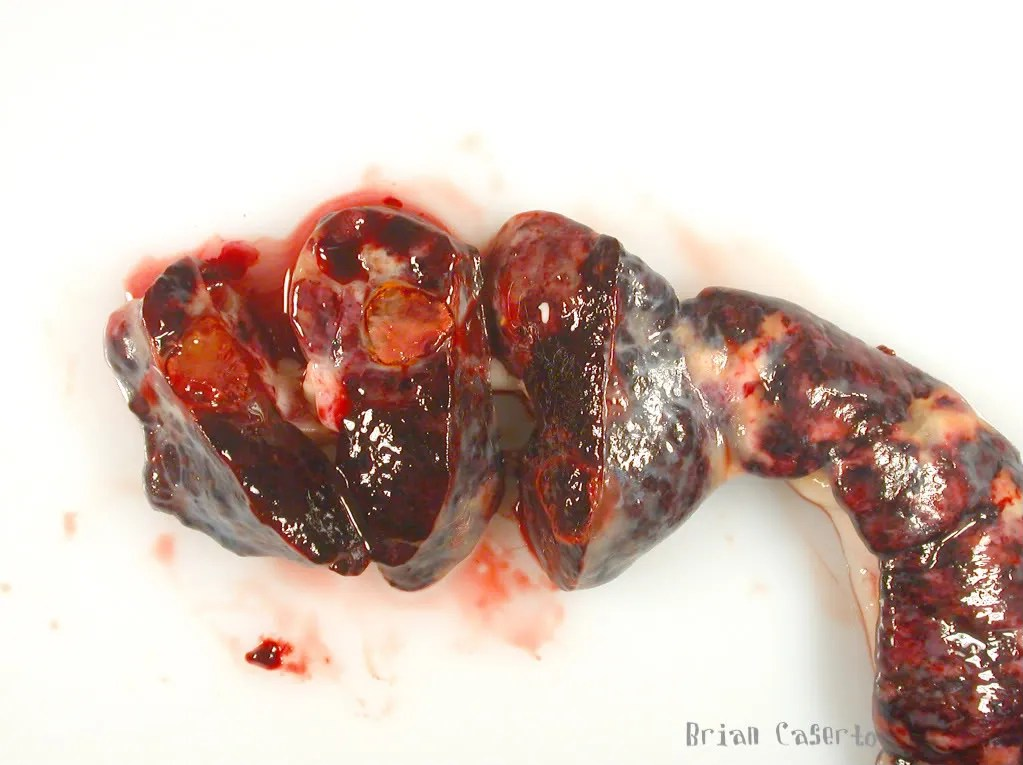 Spleen, cut surface- the mass contains a mixture of firm red and tan tissue