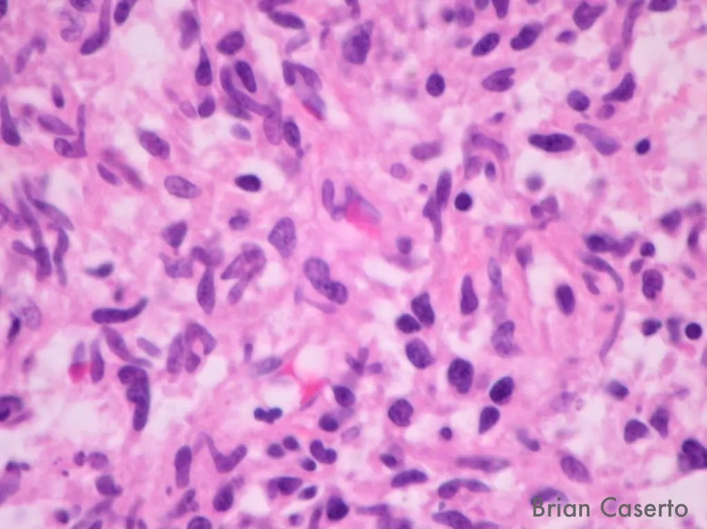 Neoplasm from the liver showing histiocytic cells