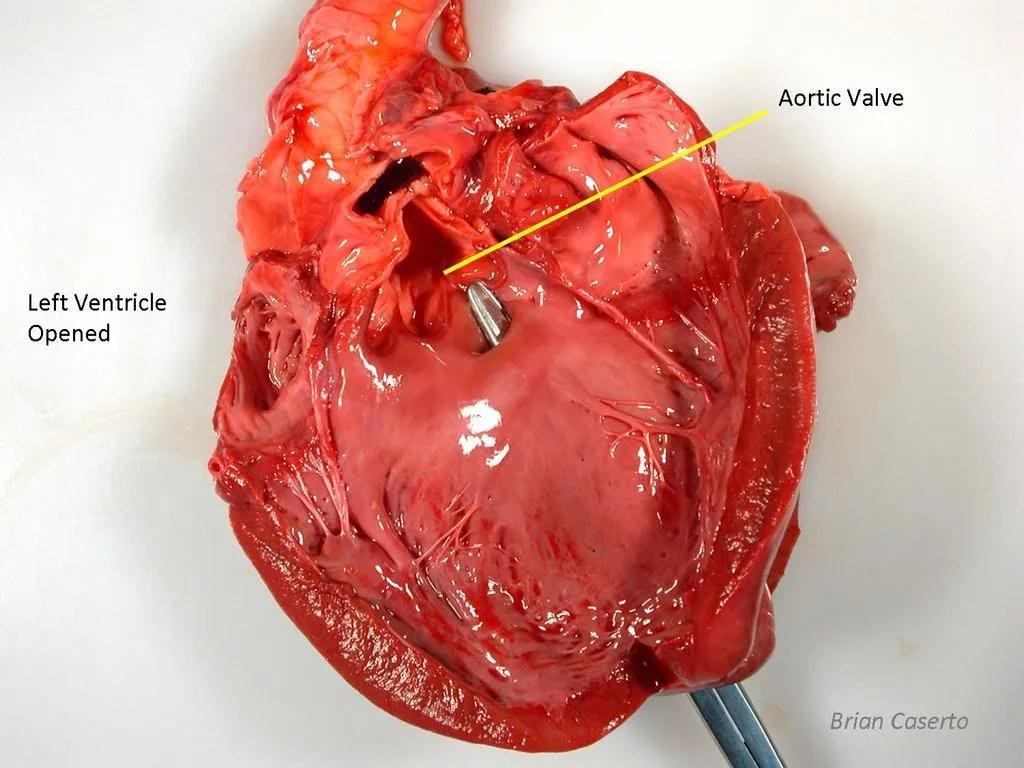 Ventricular Septal Defect from left side