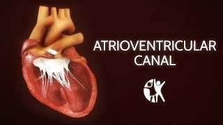 Atrioventricular Septal Defect - AV Canal