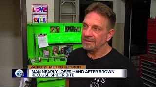Metro Detroit man bitten by brown recluse spider