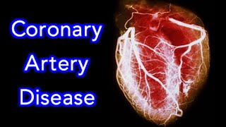 Coronary Artery Disease (CAD) - Animation