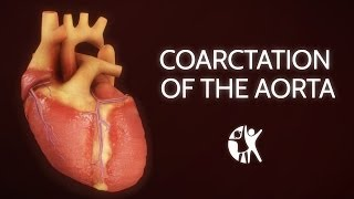 Coarctation of the Aorta - Animation