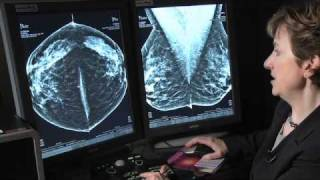 3D Breast Mammography