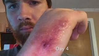 Brown Recluse Bite