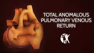 Total Anomalous Pulmonary Venous Return