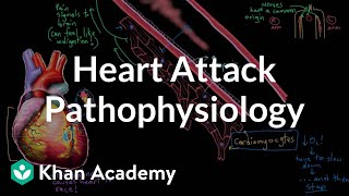 Heart attack (myocardial infarction) pathophysiology