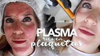 ME INYECTAN PLASMA RICO EN PLAQUETAS / MARTA IBRAHIM