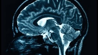 Brain Reconstruction: The next biomedical breakthrough, or a biological impossibility?