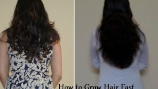 Natural remedy How to stop Hair loss & grow hair within 1 week