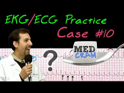 EKG / ECG Practice Strip Interpretation Explained Clearly - Case 10