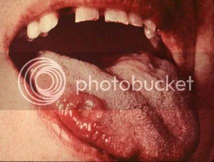Sipilis pada mulut