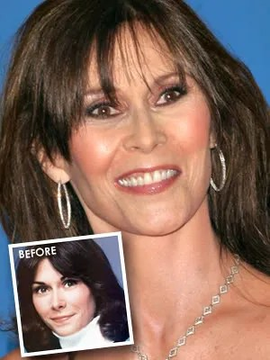 Kate Jackson Plastic Surgery