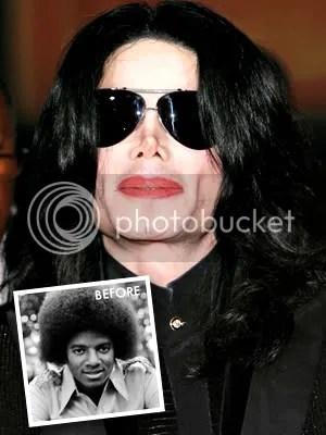 Michael Jackson Plastic Surgery
