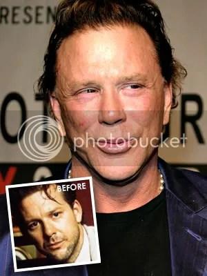 Mickey Rourke Plastic Surgery
