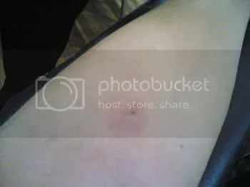 Image hosting by Photobucket
