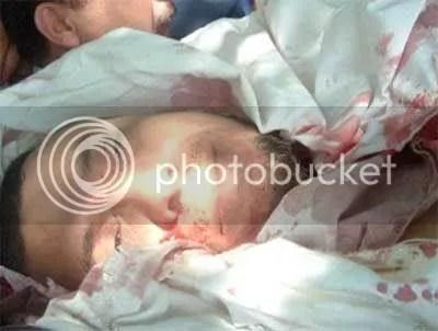 syahid1 (Subhanallah) Keajaiban Yang Menakjubkan Di Gaza
