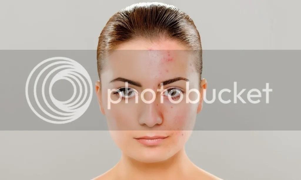 Beberapa Panduan Make Up Natural Untuk Wajah Berminyak Berjerawat Yang Tepat