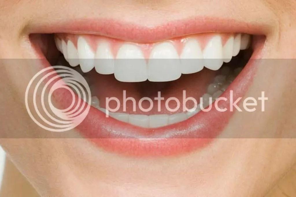 Cara Mengecilkan Bibir Tanpa Perlu Operasi