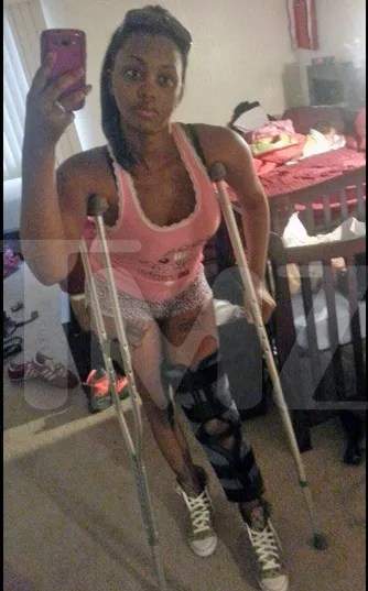 photo 0624-chris-brown-victim-leg-tmz-3_zps0f50e869.jpg
