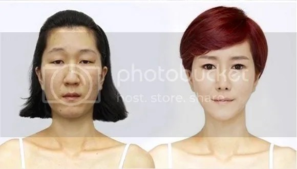 photo surgery4.jpg