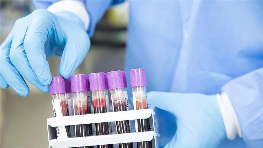 Kovid-19 tedavisinde alternatif yeni bir etken husus geliştirdi 1