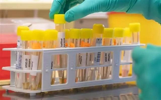 Almanya'da Corona Virüs bilançosu: Ölenlerin sayısı 6 bin 812'ye yükseldi 1