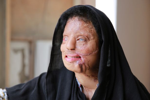 Indian acid attack survivor Sonali Mukherjee at her residence in New Delhi, India