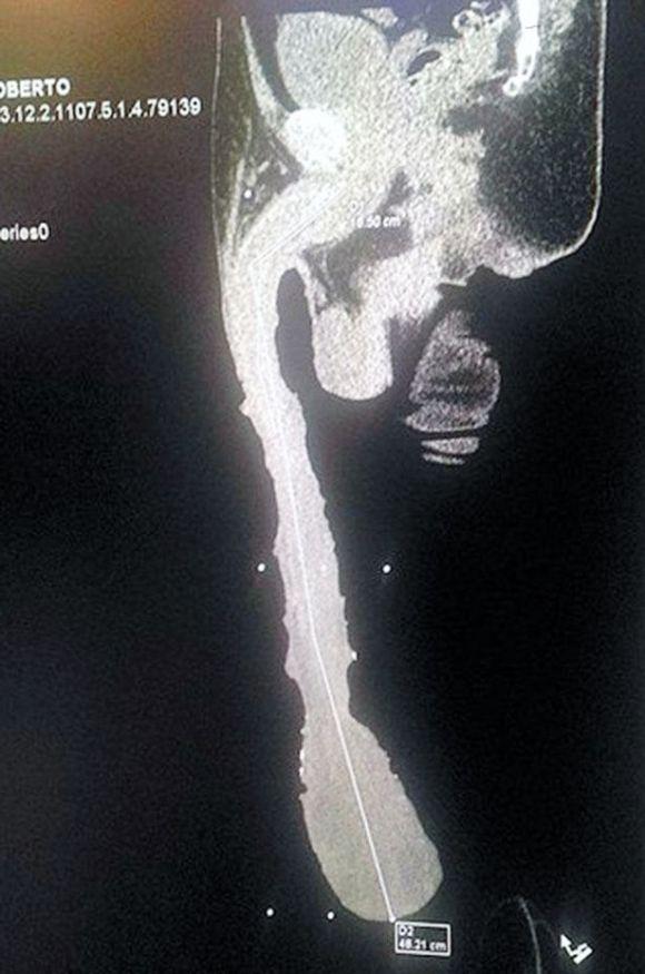 X-ray of the man's Roberto Esquivel Cabrera, 52, penis