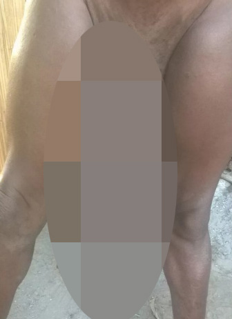Meet the man who can't have sex because his penis has grown bigger than a BABY
