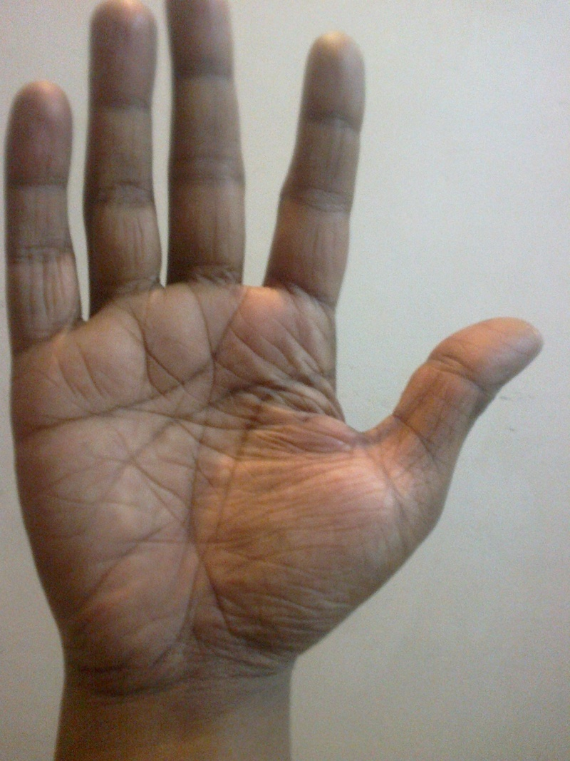 Can My Birth Chartfrom 2 Determined By Seeing My Palm