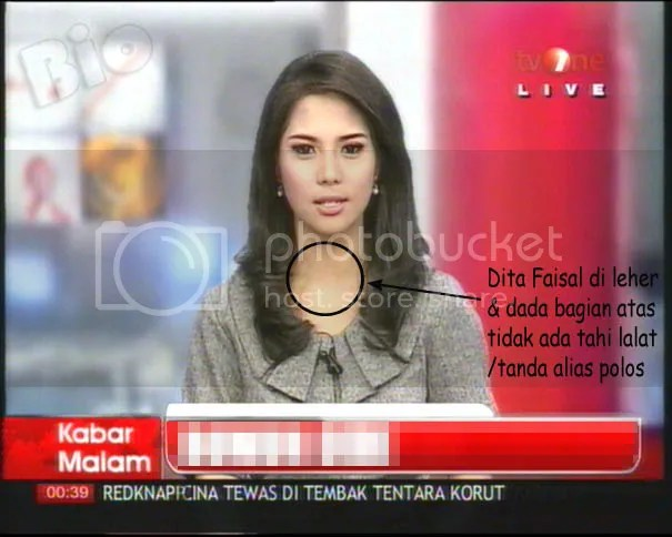 Perbedaan Dina dan Dita Faisal tvOne (2/2)