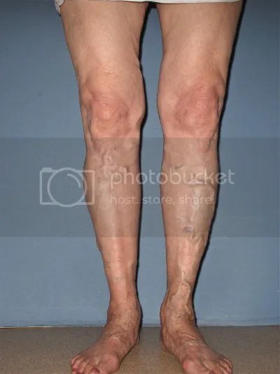 spider veins in legs treatment