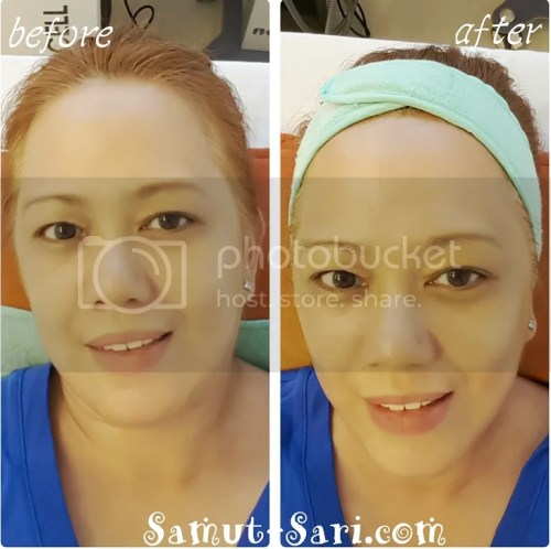 Skin Touch Aesthetic & Slimming Center CryoContour Procedure Treatment