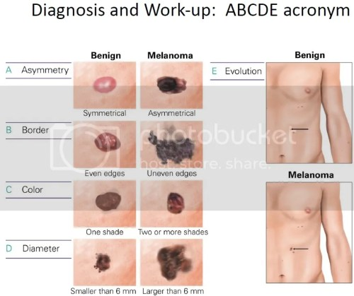 Diagnosis and Work-up of Melanoma