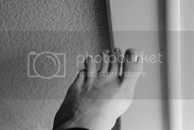 Imperfection_Foot