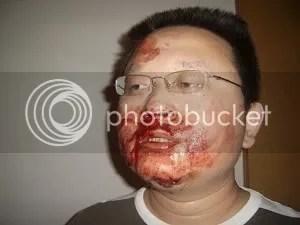 Sun Buer been beaten