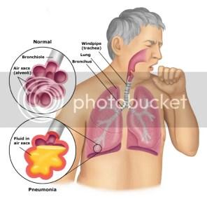 Cairan kahak mengganggu sistem pernafasan
