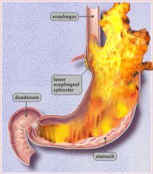 GERD stomach flames