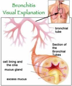 bronchitis_diagram
