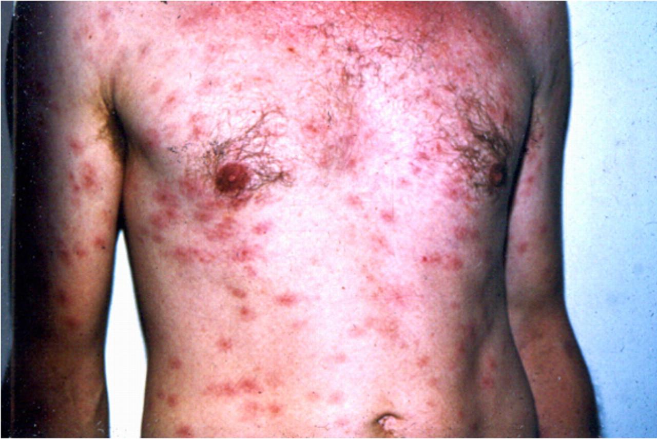 Skin lightning treatment in bangalore dating 9