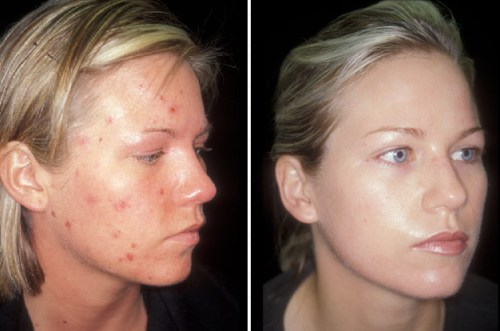 ACNE-MASKS-NATURAL-1057