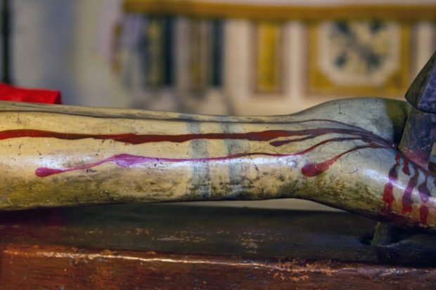 Parte de la mano, muñeca y brazo izquierdo (derecha del observador) y marcas dobles de la soga...