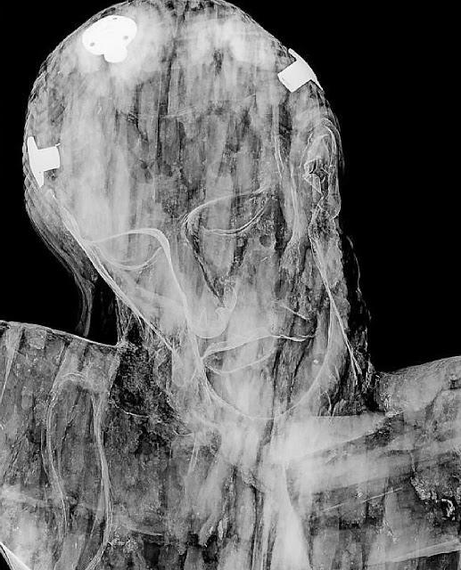 Santo Cristo La Grita rostro radiografía