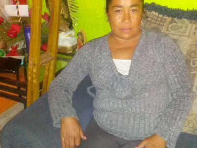 Georgina Miranda Basurto, paciente Gaucher del ISSEMyM, sin tratamiento médico